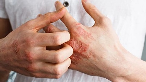 Severe Active Atopic Eczema Tied to Increased Mortality Risk