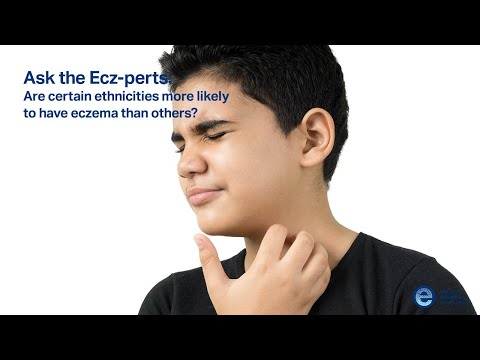 ask the ecz perts are certain ethnicities more likely to have eczema