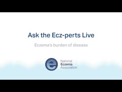 ask the ecz perts live eczemas burden of disease