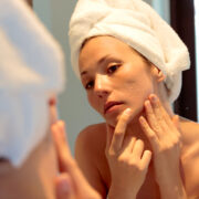 how to get rid of acne scars according to a derm