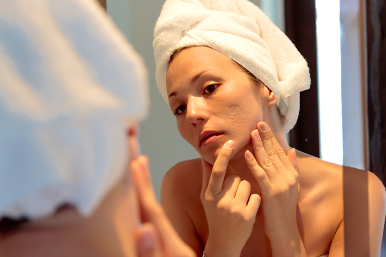 Woman freshly out of shower investigating the types of acne scars on her face
