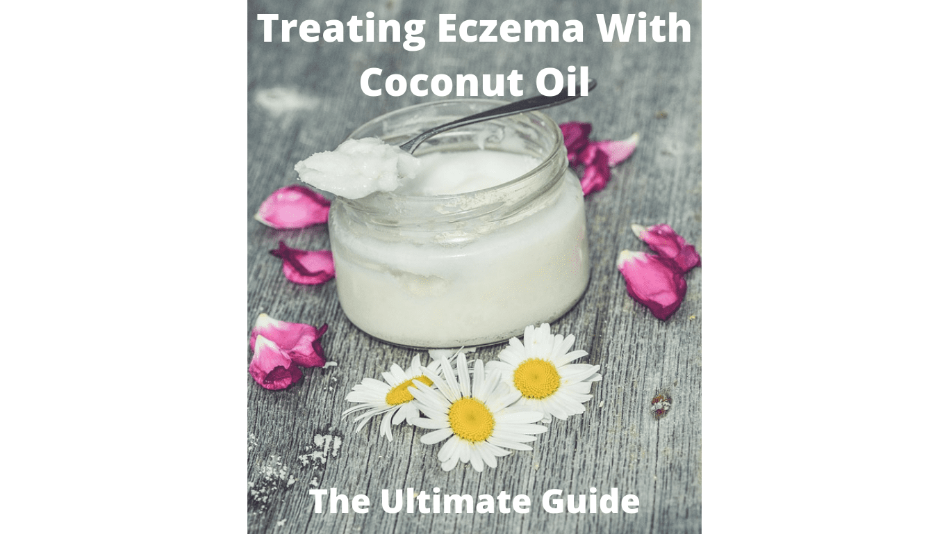 treating eczema with coconut oil
