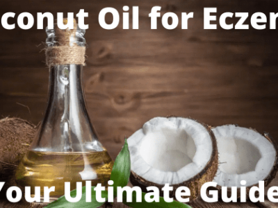 coconut oil for eczema everything you need to know your ultimate guide