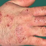 the hand eczema core outcome set