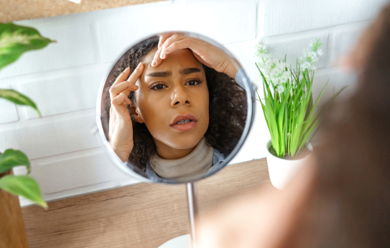 Woman looking at her breakout caused by acne in the mirror