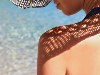 how polypodium leucotomos protects your skin from sun damage