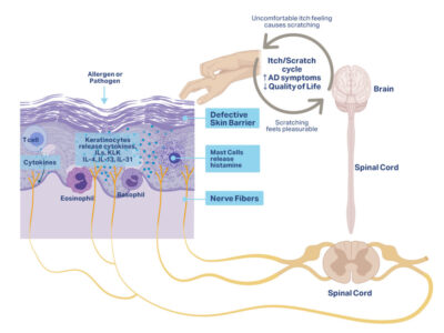 the complex science behind itch in atopic dermatitis